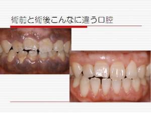 歯科治療の術前と術後