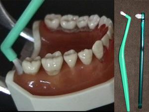 歯磨き方法 小歯ブラシ