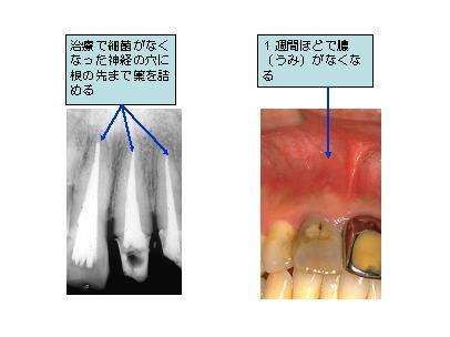 歯の根っこに薬を詰める(根管充填)