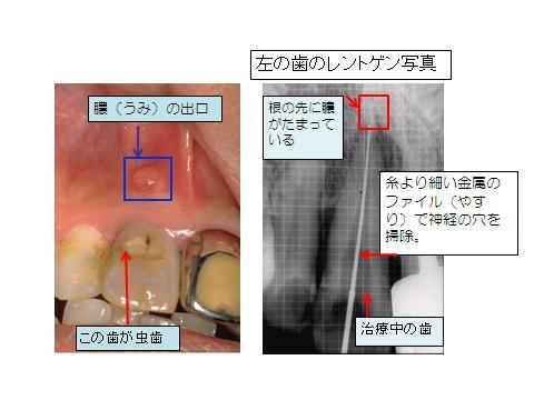 歯の根っこの治療(根管治療)