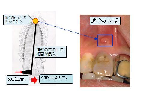 う蝕(虫歯)の進行